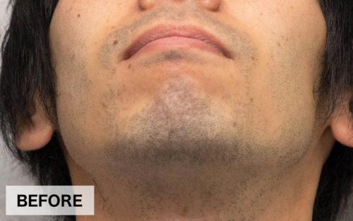 ヒゲ脱毛の施術前の写真