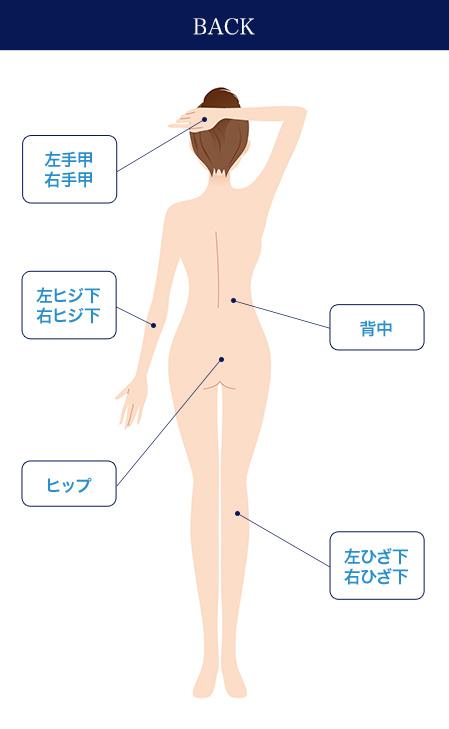 フレイアクリニックの全身脱毛の範囲②